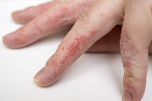Eczema treatment Tucson & Sierra Vista