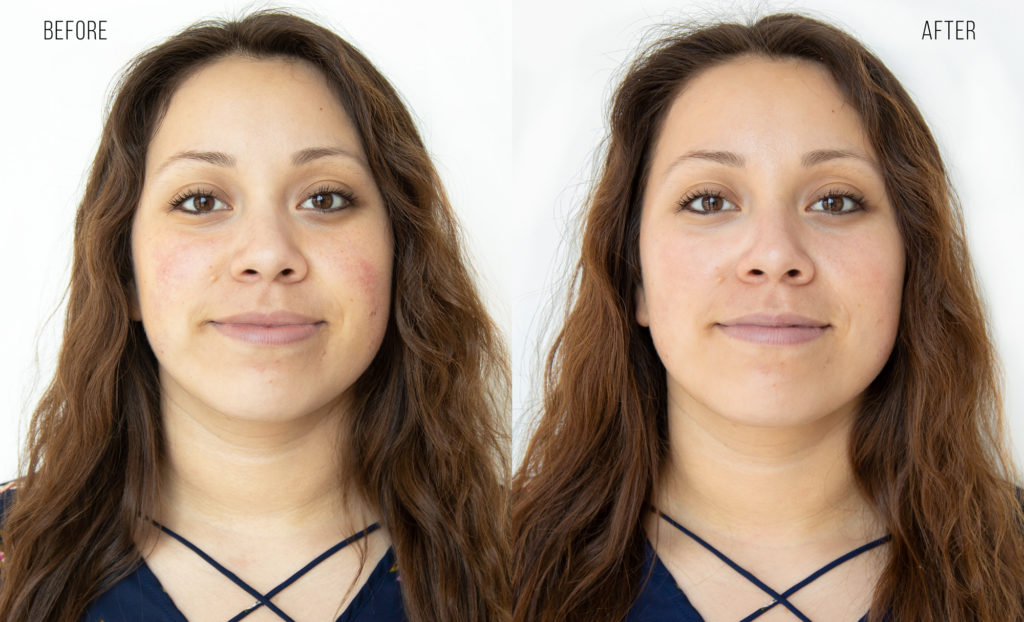 Before After HydraFacial