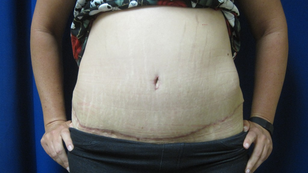 Panniculectomy Before Amp After Gallery Dermatology